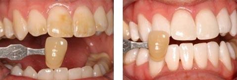 Teeth whitening Tauranga, tooth filling, dentures BOP